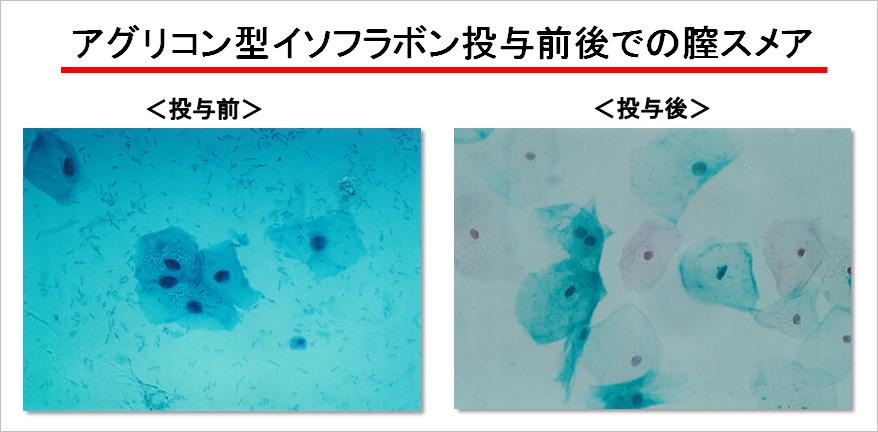 アグリコン型イソフラボン投与前後での膣スメア
